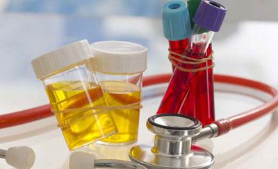 анализы крови и мочи в соответствующей таре
