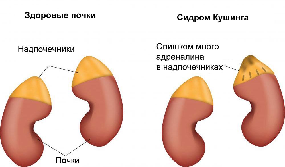 Здоровые почки и почки с поражением Синдромом Кушинга