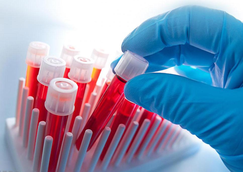 С помощью биохимического анализа возможно диагностировать патологии у животного