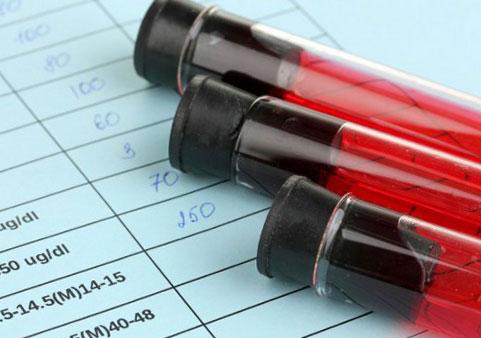 Общий анализ крови у кошек  дает представление о физиологическом состоянии организма